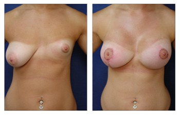 Avoiding Breast Implant Malposition, CPSI.
