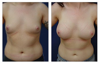 Breast Augmentation Fat Transfer, CPSI.