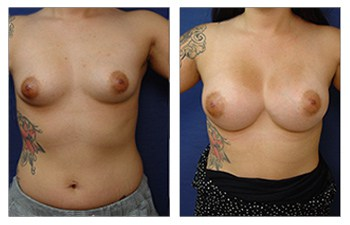 Rapid Recovery Breast Augmentation, CPSI.