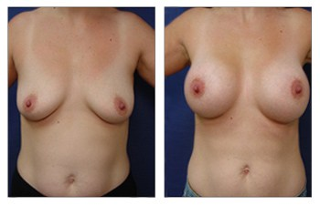 Types of Breast Augmentation Surgery, CPSI.