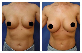 Breast revision Los Angeles