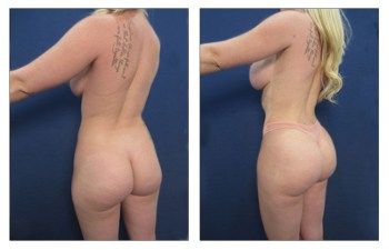 Buttocks Augmentation Los Angeles