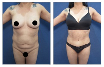 How to Get an Innie Belly Button with a Tummy Tuck