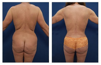 Brazilian Butt Lift Newport Beach - Expansion Vibratory Lipofilling