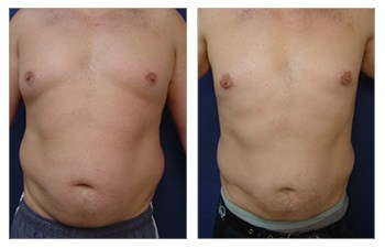 Best Gynecomastia Doctor