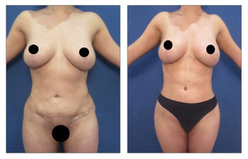 How Can I Have Painless 360 Lipo?