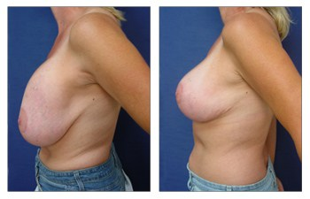 Breast Lift Implant Revision