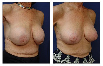 Top Breast Revision Surgeon