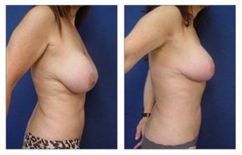 traditional breast revision Los Angeles