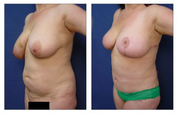 Which breast lift do I need? oblique view