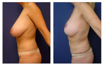 How Does Breast Lift Work