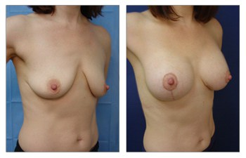 When Is A Breast Lift Covered By Insurance? right oblique view