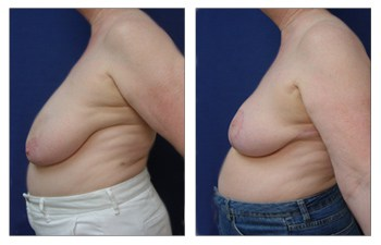 Where Are Breast Lift Scars? left view
