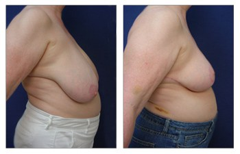 Where Are Breast Lift Scars? right view