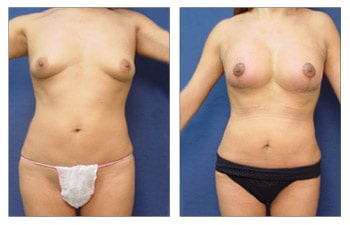 Breast Lift with Implant Augmentation to Increase Breast Mound Size, CPSI