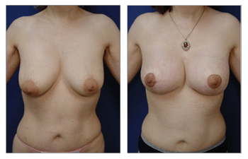 Breast Lift With Implant Augmentation Southern Orange County; CPSI