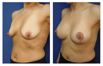 Breast Lift With Implant Augmentation