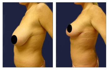 Before and after surgery image of a mini tummy tuck to lower the belly button