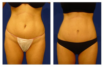 How is a Mini Tummy Tuck Performed