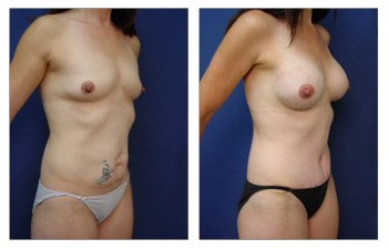 After surgery image of a mommy makeover with a tummy tuck and breast augmentation