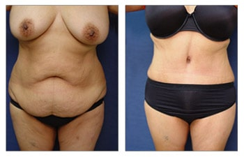 Before and after surgery result of achieving the ideal belly button shape