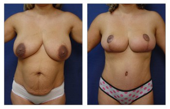 Tummy Tuck, Liposuction, Vaser Lipo