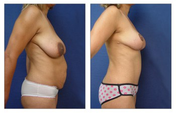 After surgery result of a Tummy tuck Newport Beach