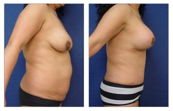 After surgery result of Tummy Tuck Beverly Hills