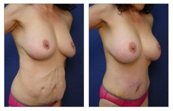 After surgery result of elimination of Abdominal Scar Following Tummy Tuck