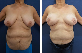 Breasts Look Better After A Breast Reconstruction