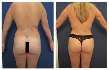 Brazilian Buttocks Lift (BBL)