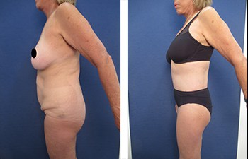 Who Does the Most VASER Liposuction Surgeries