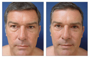 Fat Transfer for Male Faces