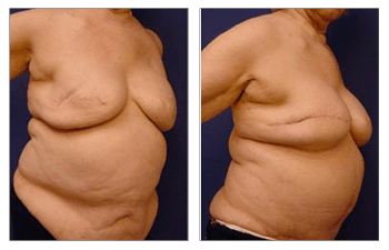 Breast enhancement Los Angeles