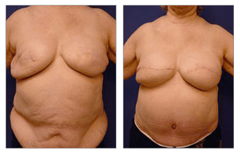 Fat Transfer Following Breast Reconstruction