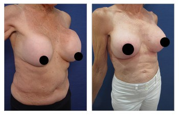 Before and after images for Fixing Capsular Contracture Deformities