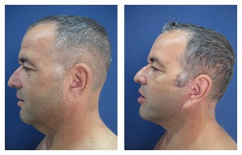Facelift Cost - before and after surgery