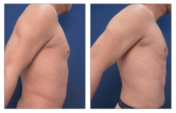 Abdominal Etching Cost - before and after surgery