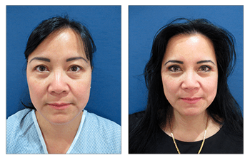 No invisible incision line upper blepharoplasty