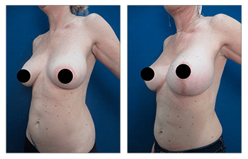 Breast lift with implants over the muscle - after surgery