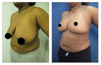 Best Breast Reduction - before and after surgery