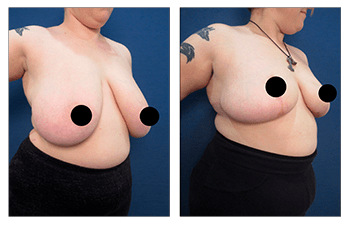 Get Insurance Coverage for Breast Reduction -  Before and after surgery