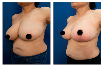 Eliminating redness over lower breast following breast lift