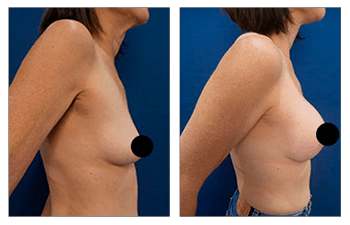 Images of patients after the expensive breast lift with implants