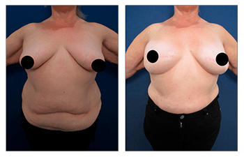 Before and after image post Bilateral Breast Mastectomy