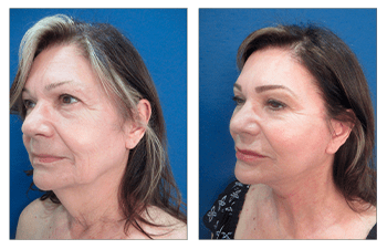 Natural Facelift Results - before and after surgery