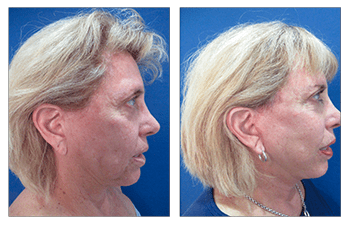 Surgery result after Elimination of Neck Fullness Surgery