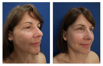 No upper eyelid surgery goes wrong - before and after result