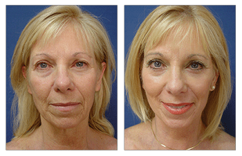 Face Lift Surgery Cost -  before and after surgery