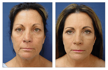 Where are facelift scars